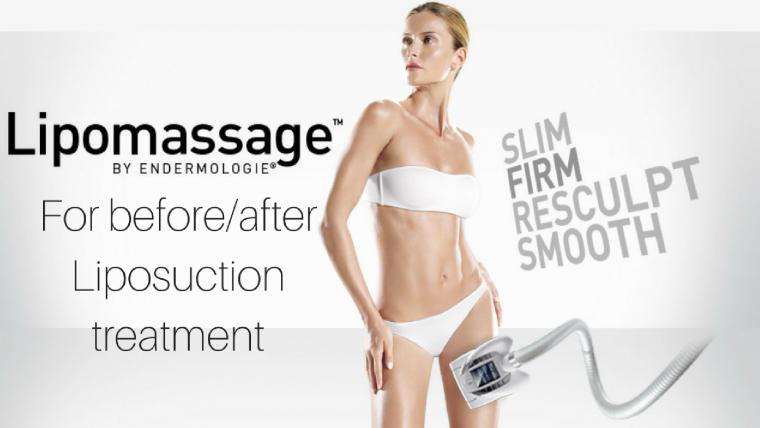 Liposuction Treatment